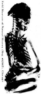 xray-of-side-view-1foot-man